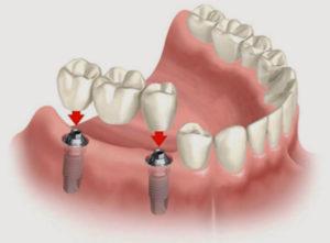 Несъемный проиез при отсутствии нескольких зубов