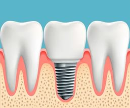 Несъемный проиез на один зуб